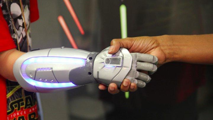 Cheap prosthetic arms let kids become a Jedi Knight, Iron Man or Elsa